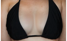 Size - C - Natural breast enlargement